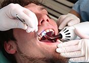 Dental fillings Columbus OH