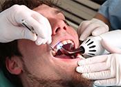 Dental fillings Columbus OH