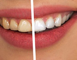 Get Whiter Teeth